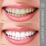 1 x 10ml Quantum Whitening Gel blanchiment dentaire Seringues sans Peroxyde pour ultra blanc Dents de la marque Quantumweiss image 2 produit