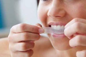 14 bandes blanchissantes – Kit dents blanches maison professionnel, sûr, et facile à utiliser de la marque jnh image 0 produit