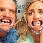 Atmoko 20Pcs Mache-Mots Ecarteur Retracteur Oral Ouvre Bouche pour Famille Amis de la marque LiSmile image 4 produit