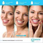 blanchiment dentaire pro white TOP 1 image 2 produit