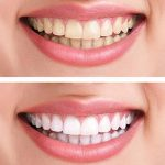 blanchiment dés dents gel TOP 0 image 2 produit