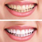 Blanchiment des dents • MEAWHITE® Pen • Stylo accélérateur • Blanchir les dents • ZERO peroxyde • Effet blancheur immédiat • Smile avec Meawhite • Cliquez & souriez ! • 2 à 5 teintes de blancheur de dents • Cosmétique fun • 100% sûr pour vos dents • PLAST image 2 produit