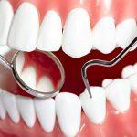 blanchiment dés dents dentiste TOP 0 image 2 produit