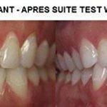 blanchiment dés dents express TOP 1 image 2 produit