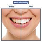 blanchir les dents rapidement maison TOP 1 image 1 produit