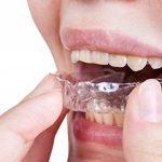bouche avec appareil dentaire TOP 4 image 1 produit