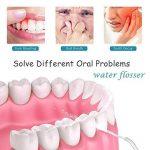 couronne implant dentaire TOP 11 image 2 produit