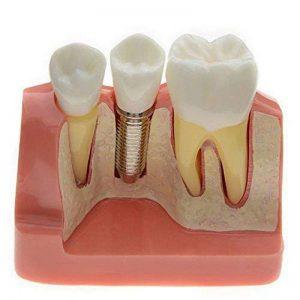 couronne implant dentaire TOP 4 image 0 produit