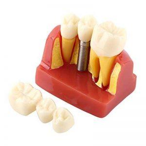 couronne implant dentaire TOP 5 image 0 produit