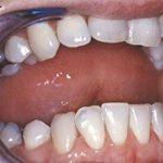 dentifrice prothèse dentaire TOP 1 image 4 produit