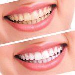 Gaeruite Kit de Blanchiment des Dents de Qualité Professionnelle - Maison Dents Nettoyeur Dent Blanchisseur Blanchissant Forte Gel Dentaire de la marque gaeruite image 1 produit