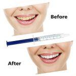 Gearmax Kit de Blanchiment des Dents de Blanchiment Dentaire Professionnel de la marque Gearmax image 3 produit