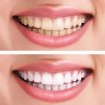 gel pour blanchiment dés dents TOP 6 image 2 produit