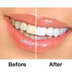Grinigh 28 Bandes de Blanchiment des Dents Kit de Blanchiment Dentaire avec Huile de Noix de Coco Teeth Whitening Strips de la Technologie Avancée Anti-dérapant Qualité Professionnelle Efficacité Prouvée 14 Treatments de la marque Grinigh image 3 produit