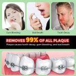 hydropulseur bucco dentaire TOP 8 image 4 produit