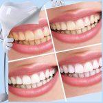 Kit de blanchiment des dents HyPee 2018 Pro Nano Bandes de blanchiment des dents Nano sans peroxyde Kit de blanchiment des dents Kit de blanchiment des dents de la marque HyPee image 4 produit