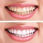 KIT Recharge Meawhite Blanchiment dentaire à domicile Gel blanchissant Recharge 100% SANS peroxyde Dents blanches en 5 à 10 jours (2 seringues 10 ml) Normes CE, 100% sûr pour vos dents de la marque Plastimea image 2 produit