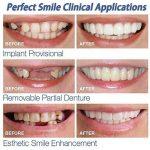 LCLrute 5PC Dents Cosmétiques D'ajustement Provisoire De Confort De Sourire, Placage Cosmétique Supérieur De Dents De Prothèse Dentaire de la marque LCLrute image 3 produit
