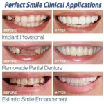 Longra 5PCS dents cosmétique Smile Confort Fit Cosmétique Soins Dentaires Faux Dents Les dents Dents de prothèse dentaire dents cosmétiques Cosmétique Prothèse Les dents(Blanc) de la marque Longra makeups image 3 produit