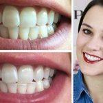 Mousses Dentifrice Blancheur Goût Menthe X2 | Mousses Professionnelles Blanchissantes à domicile X2 de la marque WhiteCare image 1 produit