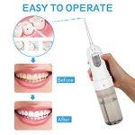 nettoyeur haute pression dentaire TOP 10 image 3 produit