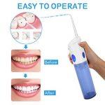 nettoyeur haute pression dentaire TOP 9 image 3 produit