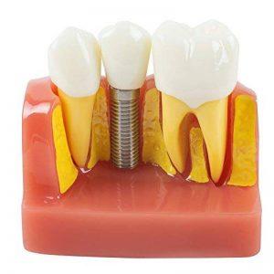 Risingmed Modèle de Dents de démonstration Dentaire Analyse d'implant Crown Bridge 2017 de la marque Risingmed image 0 produit