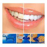 SHOP STORY - Kit de Blanchiment Dentaire WHITELIGHT WHITE LIGHT PRO de la marque SHOP STORY image 2 produit
