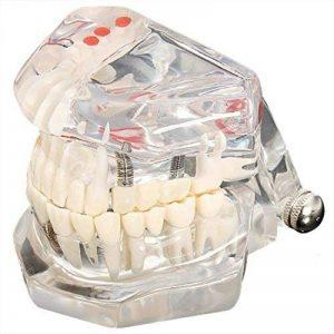 SODIAL(R)modele modele de dent dentaire modele de soins prothese dentaire medecin Demo dentaire K67 de la marque SODIAL image 0 produit
