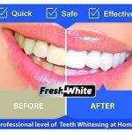Super Blanchiment des dents - 14 effets professionnels de 28 WHITESTRIP de traitement White Strips Whitestrips Whitestripes White Stripes Bleaching Blanchiment des dents Teeth de la marque Fresh White image 3 produit