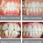 WAOBE Dents Alignement Formateur Retenue, Transparent Mou Et Dure Dentaire Bouche Garde Orthodontique, (2 Stades, pour des Conditions Différentes De Dent) de la marque WAOBE image 1 produit