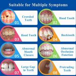 WAOBE Orthodontique Retenue, Accolades Orthodontiques Dentaires, Nuit Dentaire Bouche Garde Orthodontique, Stockage Cas (2 Stades, pour des Conditions Différentes De Dent) de la marque WAOBE image 2 produit