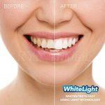 Whitelight Kit Blanchiment Dentaire Professionnel, Kit Blanchiment des Dents à Domicile Complet et Efficace pour des Dents Blanches et Saines Sans Peroxyde de la marque TANEL image 1 produit